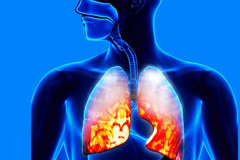 Атипичная пневмония в Новоуральске